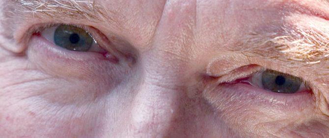 Glaucoma é o problema de visão mais comum entre os idosos